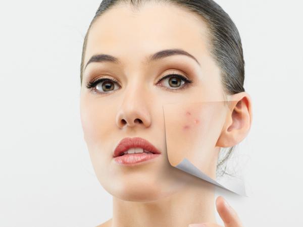 Top 5 Skin Benefits Of Hyaluronic Acid (+ Affordable