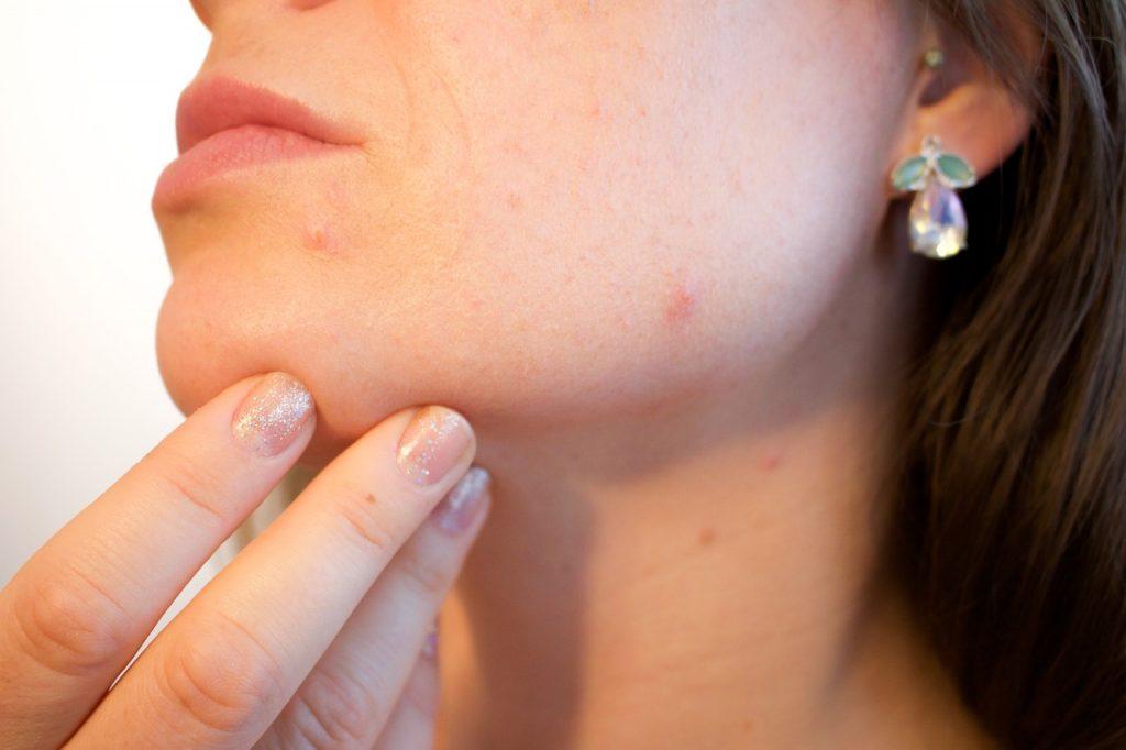 Glycerine For Oily Skin