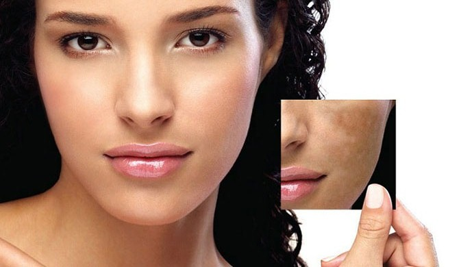 Skin Discoloration