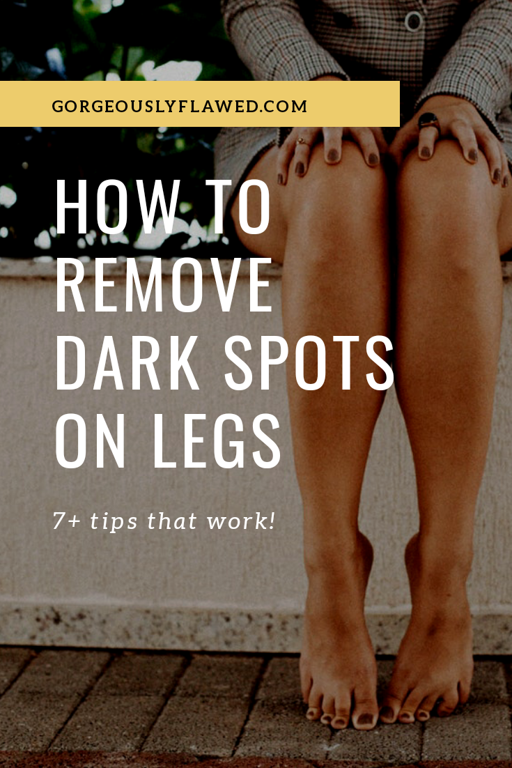 Body Lotions For Sensitive Skin: How To Remove Dark Spots On Legs