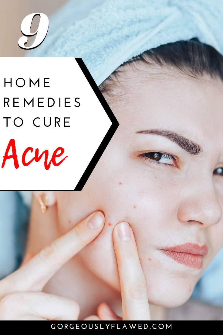 Best 9 Home Remedies To Cure Acne - 2020 [100% Working Solutions For Acne & Pimples]